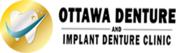Dentures clinic | Denture repair clinic Ottawa | Ottawa Dentures